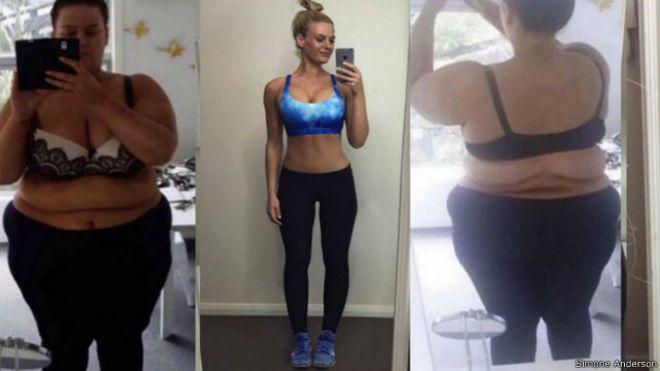 imagenes de personas obesas antes y despues