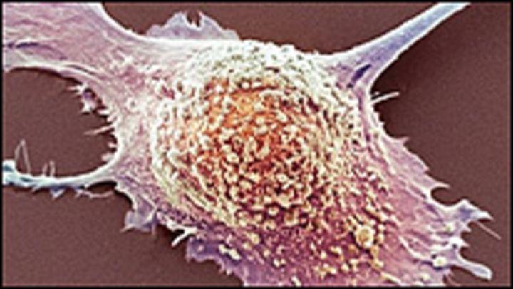 cuanto dura una persona con cancer de pancreas con metastasis