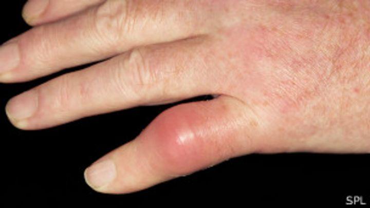 comidas que no se deben comer para el acido urico acido urico sangre exceso de ejercicio dedos hinchados acido urico trombocid