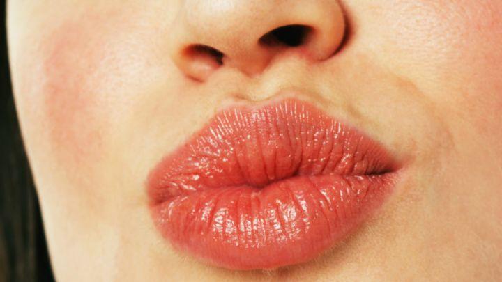 como quitar la inflamacion en los labios
