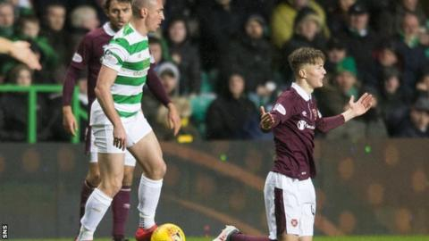 Levein aims dig at Brown over Cochrane's collarbone injury