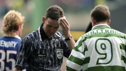 Referee Hugh Dallas mops up blood after being hit on the head by a coin in an Old Firm match in 1999