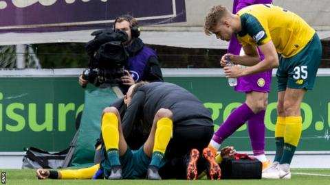 Concussion: Rugby-style video would aid Scottish football - Glasgow Warriors doctor