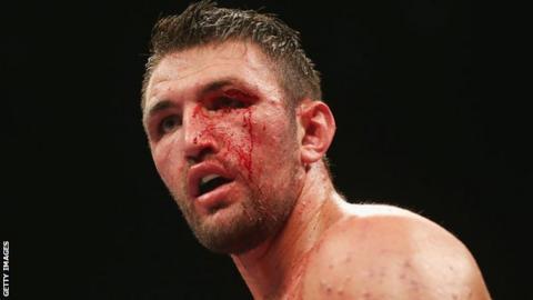 Hughie Fury beaten by Pulev in Sofia
