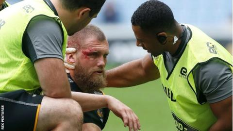 A bloodied Brad Shields receives treatment