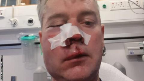 Offaly gardai investigate after referee assaulted during soccer match