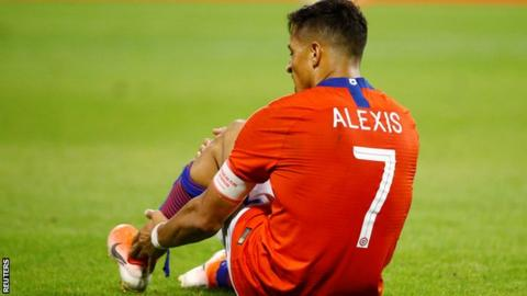 Alexis facing up to three months out if ankle problem requires surgery