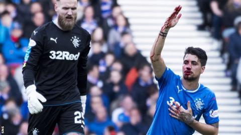 Rangers defender Fabio Cardoso calls for assistance after having his nose broken