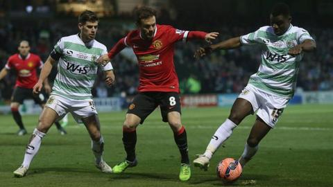 Yeovil Town v Manchester United in 2015