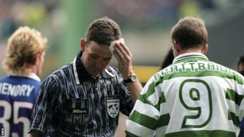 Referee Hugh Dallas mops a head wound during the 1999 title decider between Celtic and Rangers