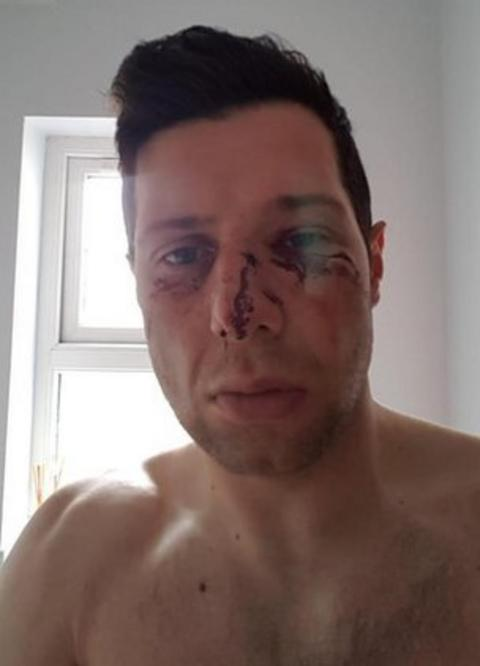 Sean Cavanagh's injuries led to him being taken to hospital