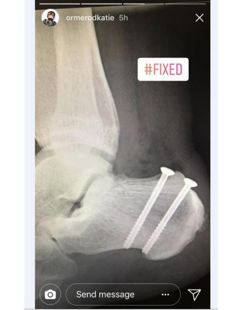 Katie Ormerod's X-ray
