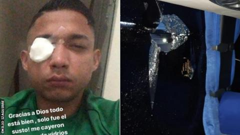 Honduras football rioting: Emilio Izaguirre among injured before Olimpia and Motagua match