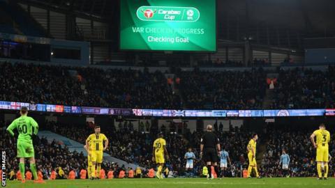 Manchester City v Burton
