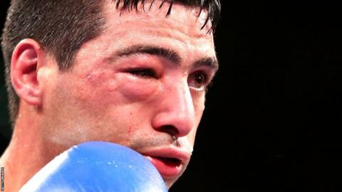 Swelling around Lucas Matthysse's right eye