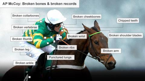 An image showing AP McCoy's broken bones - including collarbones, vertebrae, thumb, leg, cheekbones, wrist, ribs, arm, and shoulder blades