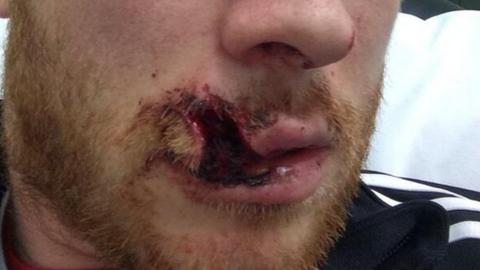 Mark Reynolds' stitched lip