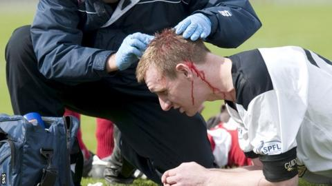 Dr Willie Stewart says more care needs to be taken with players who receive a head injury.