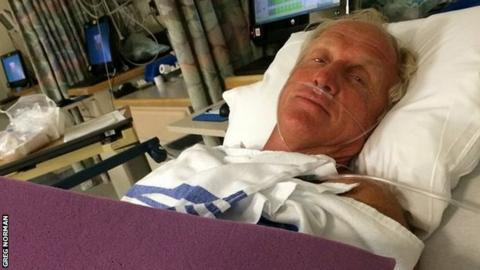 Greg Norman: Chainsaw accident sees golfer nearly lose his left hand