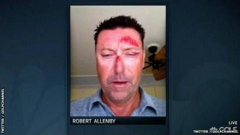 A Golf Channel picture of injured Robert Allenby