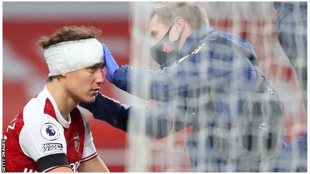 David Luiz kafa travması tedavisi gördü
