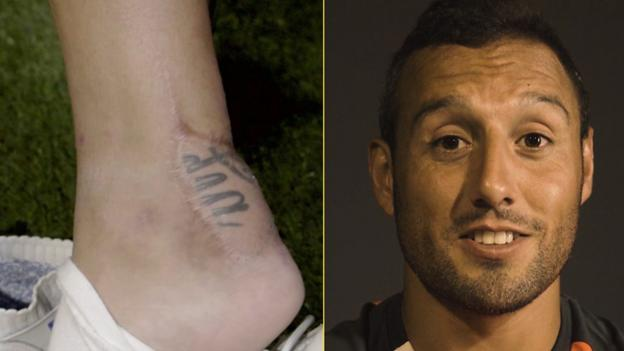 Bacteria ate eight centimetres of my Achilles tendon - Cazorla