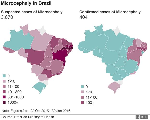 Where in Brazil is microcephaly map