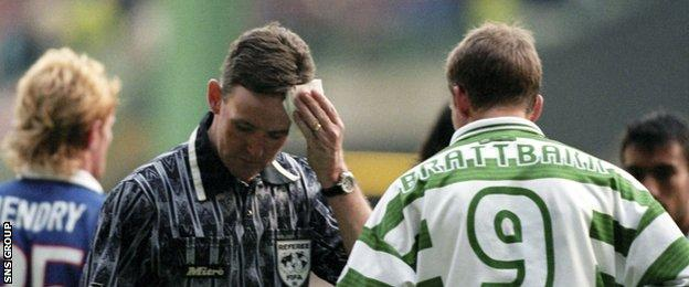 Hugh Dallas cleans blood from his head after being struck by a coin during a derby game at Celtic Park