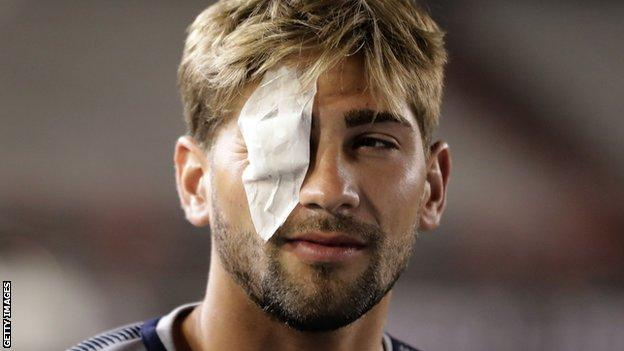 Gonzalo Lamard wears a patch covering his right eye following the attack on the Boca Juniors team bus