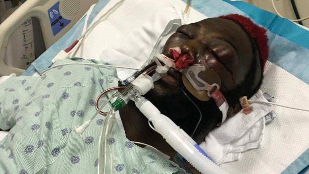 Dhafir Harris in hospital