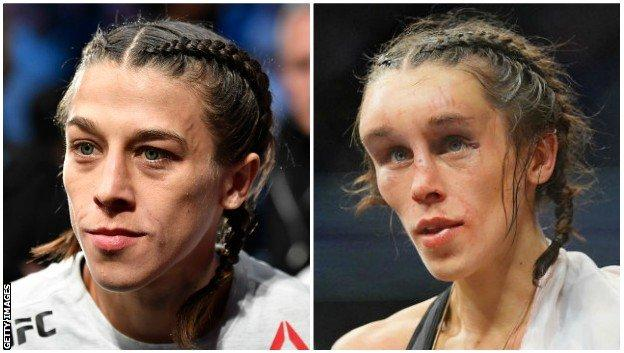 Split picture of Joanna Jedrzejczyk before and after UFC 248