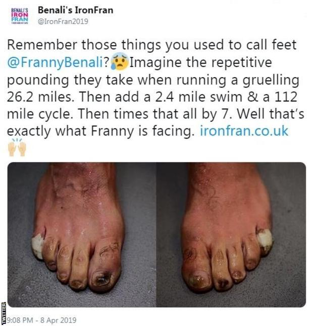 "Tweet by Benali's IronFran showing Franny Benali's feet: ""Remember those things you used to call feet? Imagine the repetitive pounding they take when running a gruelling 26.2 miles. Then add a 2.4 mile swim and a 112 mile cycle. Then times that all by 7. Well that's exactly what Franny is facing""."