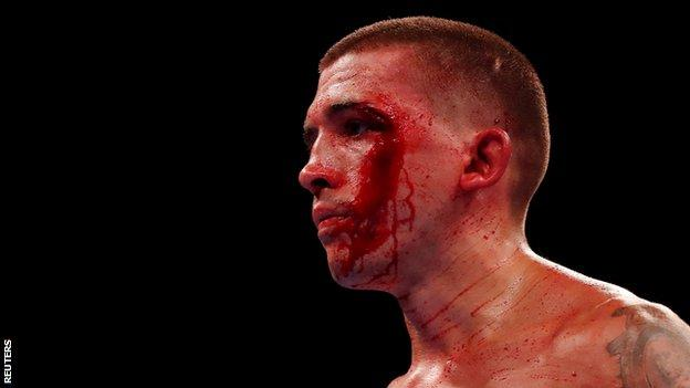Selby's two cuts were worked on relentlessly by his corner