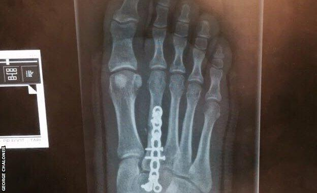A screw in George Chaloner's foot