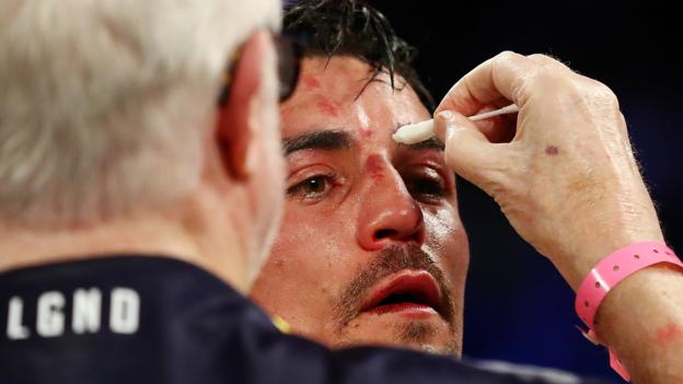 Anthony Crolla: Briton loses to Vasyl Lomachenko in Los Angeles thumbnail