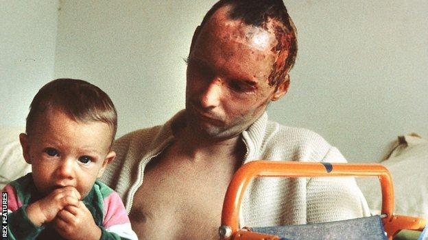 Niki Lauda with his son after the fire at the Nurburgring