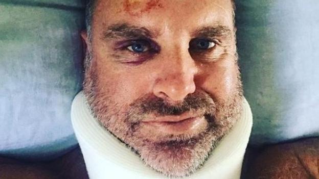 Matthew Hayden: Ex-Australia opener 'dodges bullet' after fracturing neck while surfing thumbnail