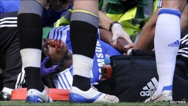 Didier Drogba receiving medical treatment