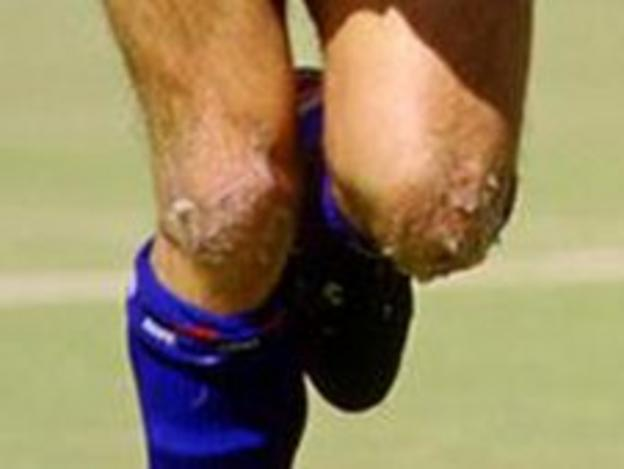 The knees of former Oldham player Frank Bunn during a match on the plastic pitch at Boundary Park