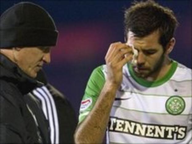 Celtic midfielder Joe Ledley tends to his cut eye