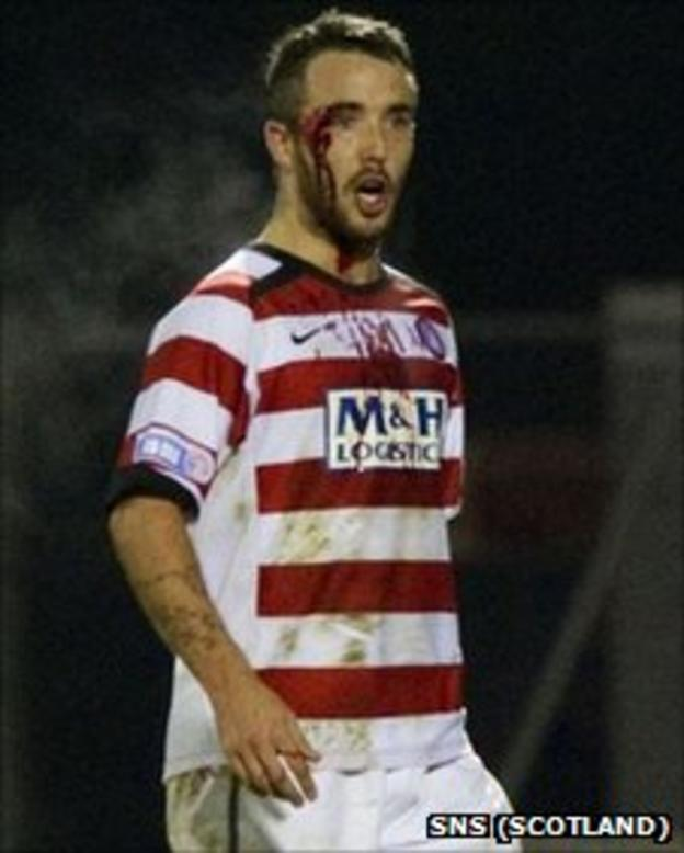 Dougie Imrie with a cut eye
