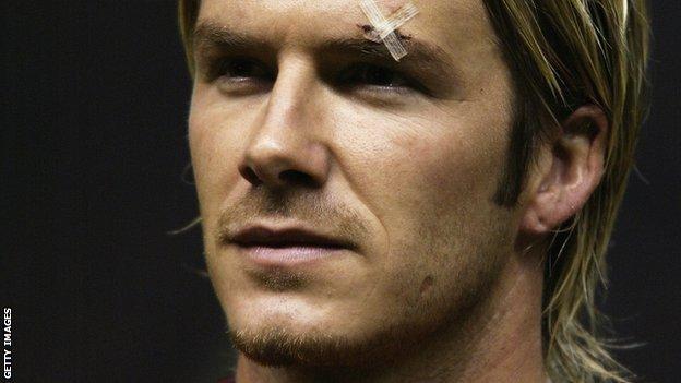 David Beckham cut eye