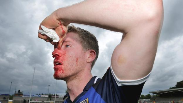 Cavan defender Rory Dunne sustained a nose injury in a typically physical Ulster championship tussle