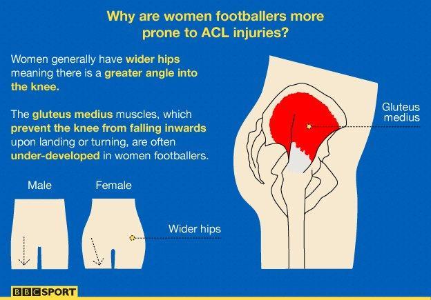 Women's knee injuries