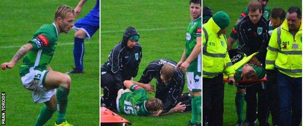 Luke Winch's injury