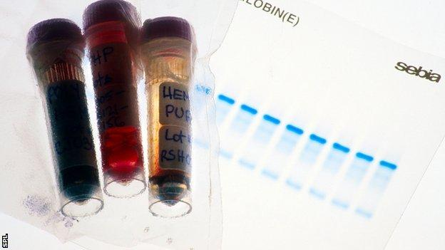 Vials of blood tested for doping purposes