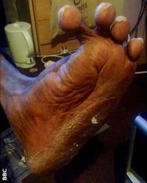 Junior's foot causes him considerable pain