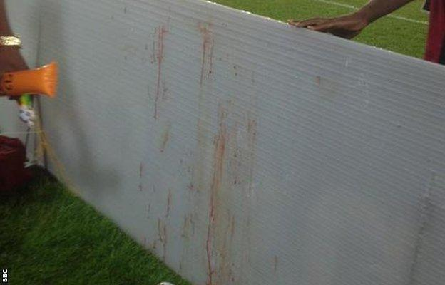 A blood-stained advertising board next to the pitch