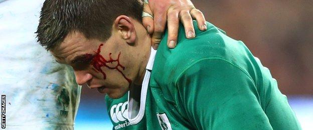 Johnny Sexton sustained a facial cut