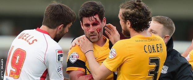 Michael Timlin bleeding